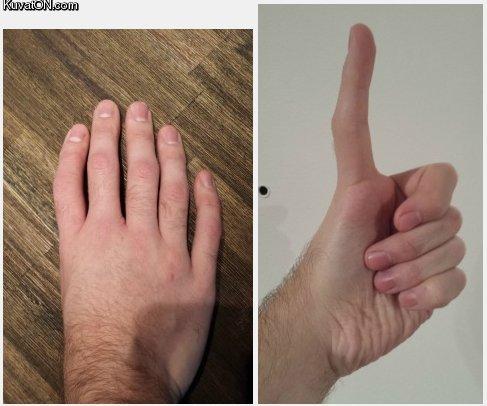 five_fingers_no_thumb.jpg